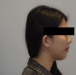 矯正處理暴牙的患者1(矯正後示意)