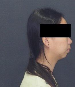 矯正處理暴牙的患者2(矯正前示意)