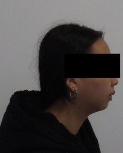 矯正處理暴牙的患者2(矯正後示意)
