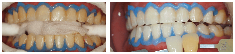 深色飲料造成牙齒變黃與牙齒美白後案例圖