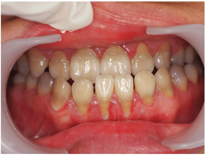 服用四環黴素造成染色的牙齒