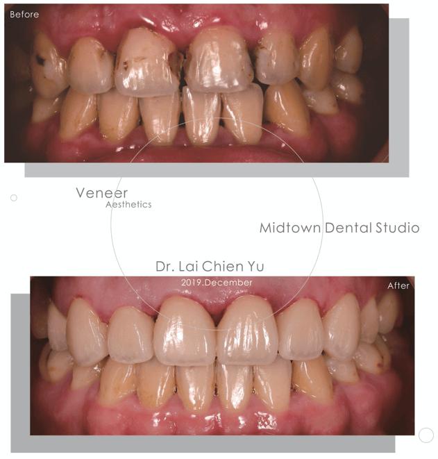 牙齒填充物造成牙齒色差使用美白貼片案例圖