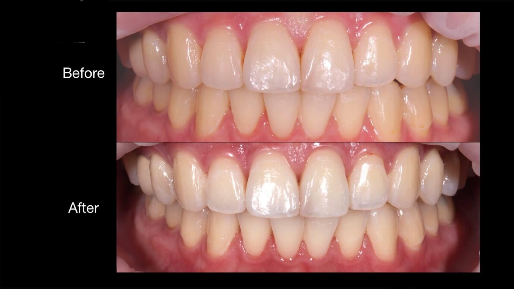 居家牙齒美白使用前後比較